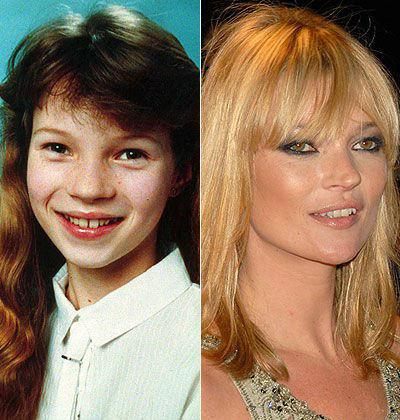 Звезды в детстве и сейчас фото