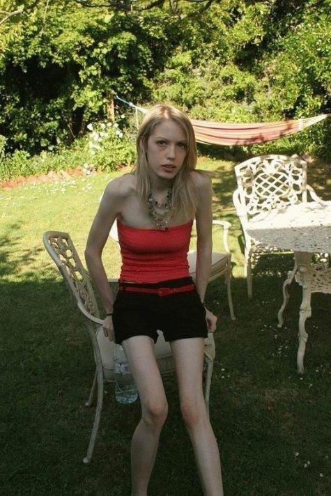Невероятный ужас!!! самые худые девушки на свете.