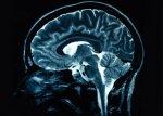 Ученые выяснили, что сиртуины могут замедлить процесс старения