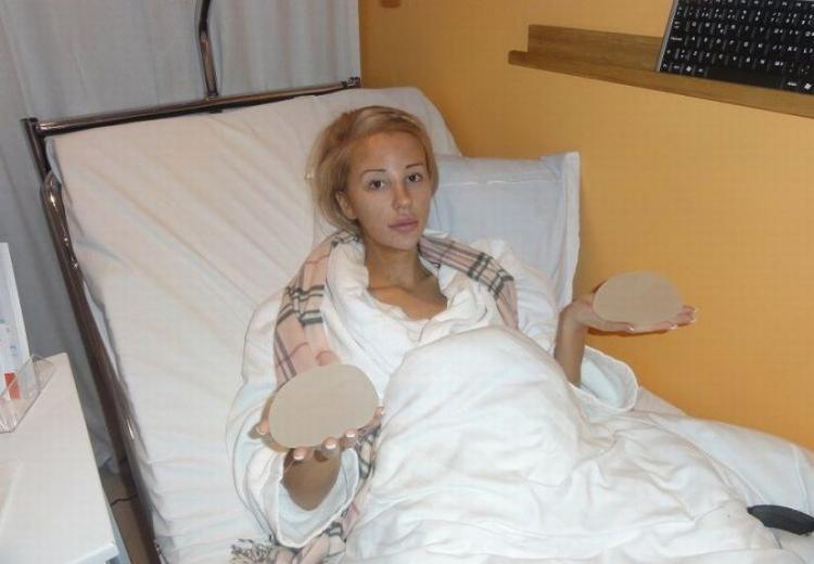 Ирен феррари фото до операции